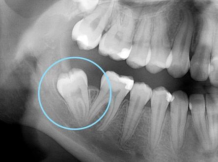 Radiographie d'une dent de sagesse qui se positionne de manière disto-angulée, soit orienté de biais vers l'intérieur de votre bouche.