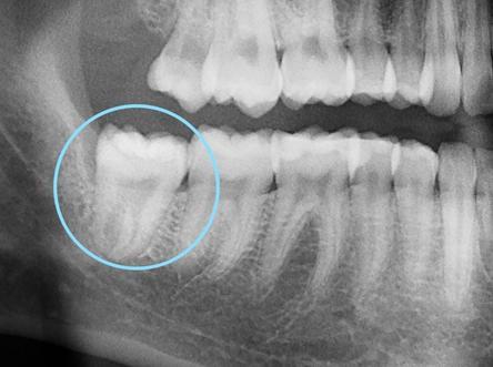 Radiographie d'une dent de sagesse positionnée à la verticale.