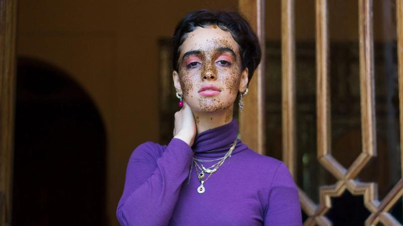Dove's Project #ShowUs challenges traditional beauty stereotypes
