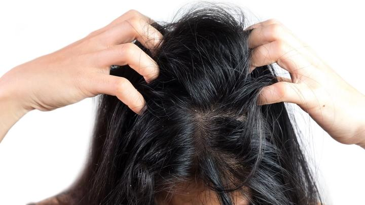 Lady with dark hair scratching head. Unilever research finds bacteria that causes dandruff.