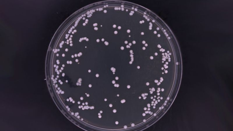 Feature image - Could this bacteria be the root cause of dandruff?