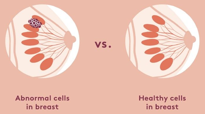 Abnormal breast cells vs health breast cells