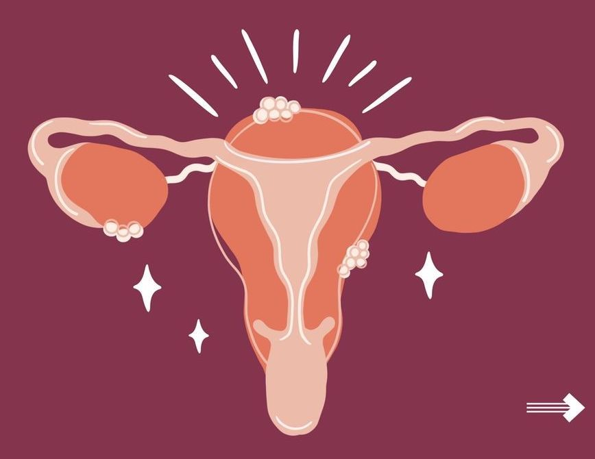 Emme's Guide to Endometriosis