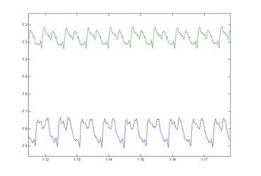 Fig 46 - Proximity Probe Raw Signals