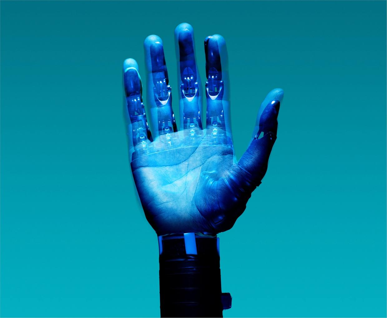 Prosthetic robot arm visualisation