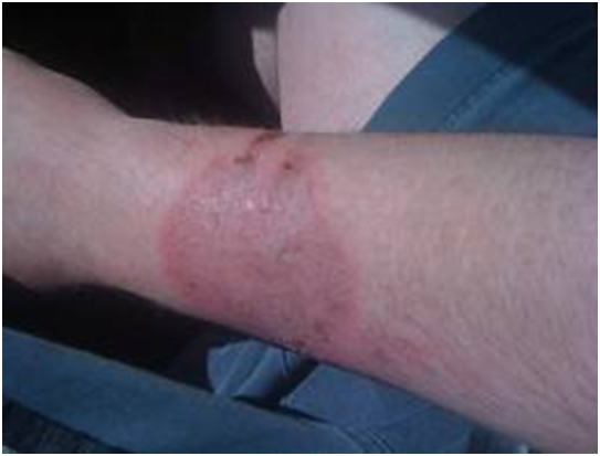 Burns on forearms from heated airbag deployment gases