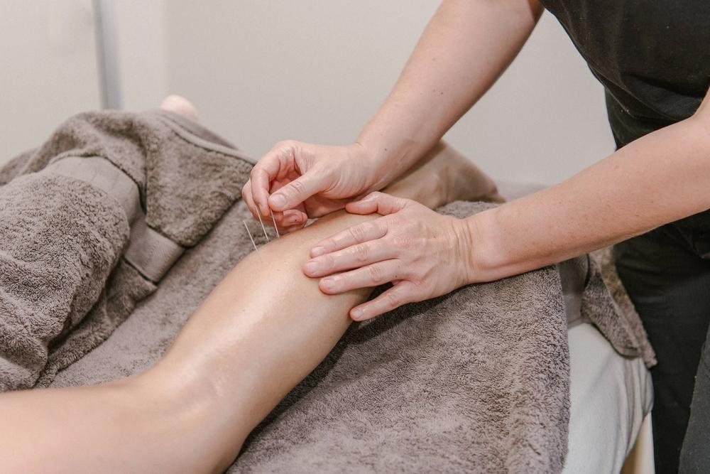 Dry Needling on a client's lower leg