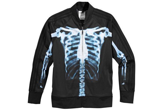 Adidas Obyo Jeremy Scott 5 1