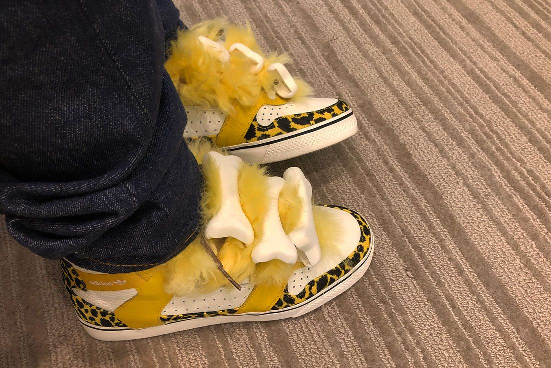 Lil Uzi Vert Jeremy Scott Adidas Bones On Foot Lateral Side Shot