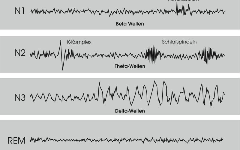EMG-Wellen während Schlaf
