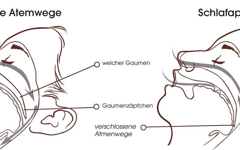 Gesicht Gaumen Obstruktives Schlafapnoe-Syndrome