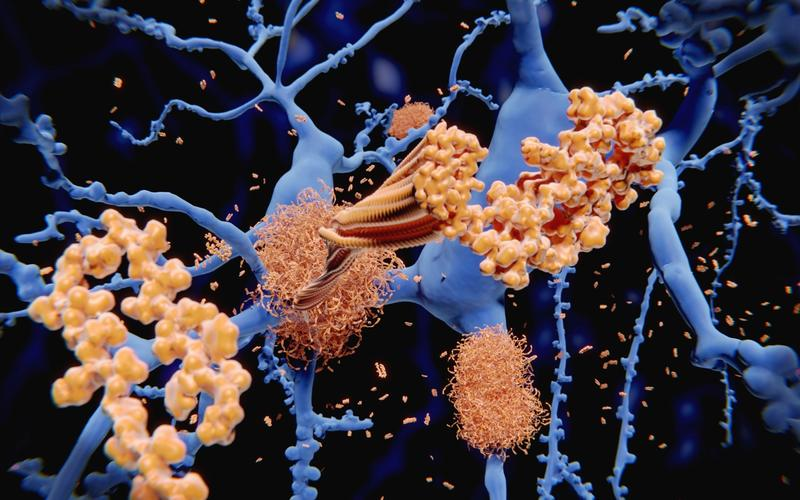 beta-Amyloid-Protein Neuronen Schlaf