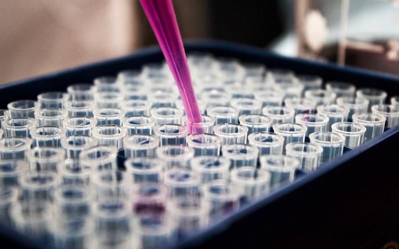 Reagenzgläser im Labor.