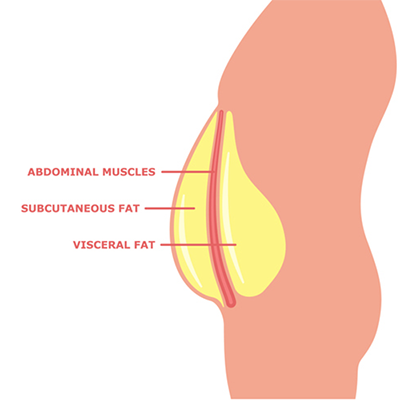 graphic showing visceral vs subcutaneous fat   how to get more vascular