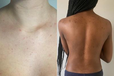 Body acne on different skin tones (left: light skin, right: dark skin)