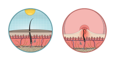 Illustration of a normal hair (left) and an ingrown hair (right)