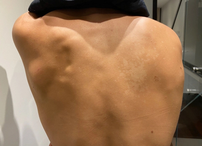 Photo of tinea versicolor on the back of a 27 year-old woman.