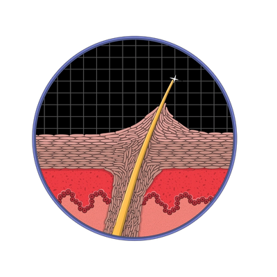 Illustration: KP is bumps of dead skin cells that form around the hair follicle