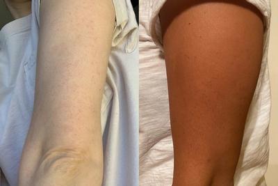Keratosis Pilaris on light skin versus dark skin