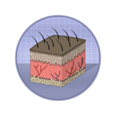 Illustration showing the skin's dermis and epidermis layers.