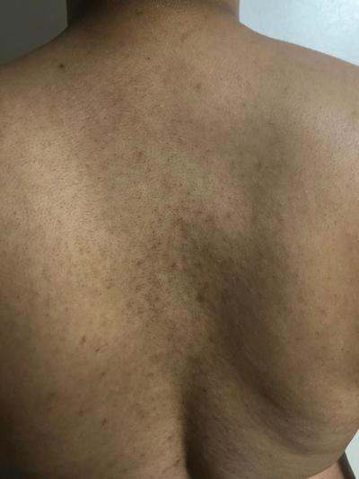 Body Acne, Clogged Pores, Tinea Versicolor