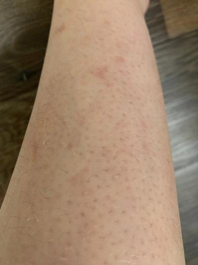 Dry Skin, Eczema