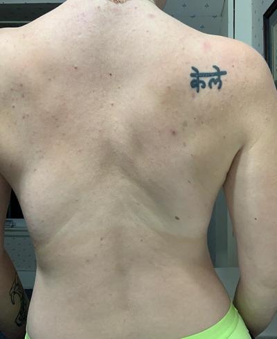 Body Acne, Clogged Pores