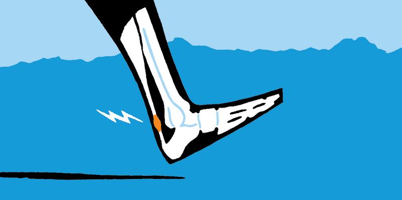 Akillestendinopati bak hælen