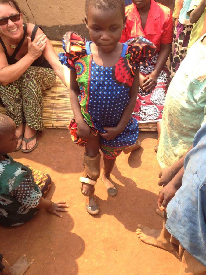 Jennifa – proud of her prosthetic leg!