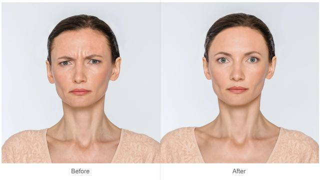 banner for Botox: Before And After