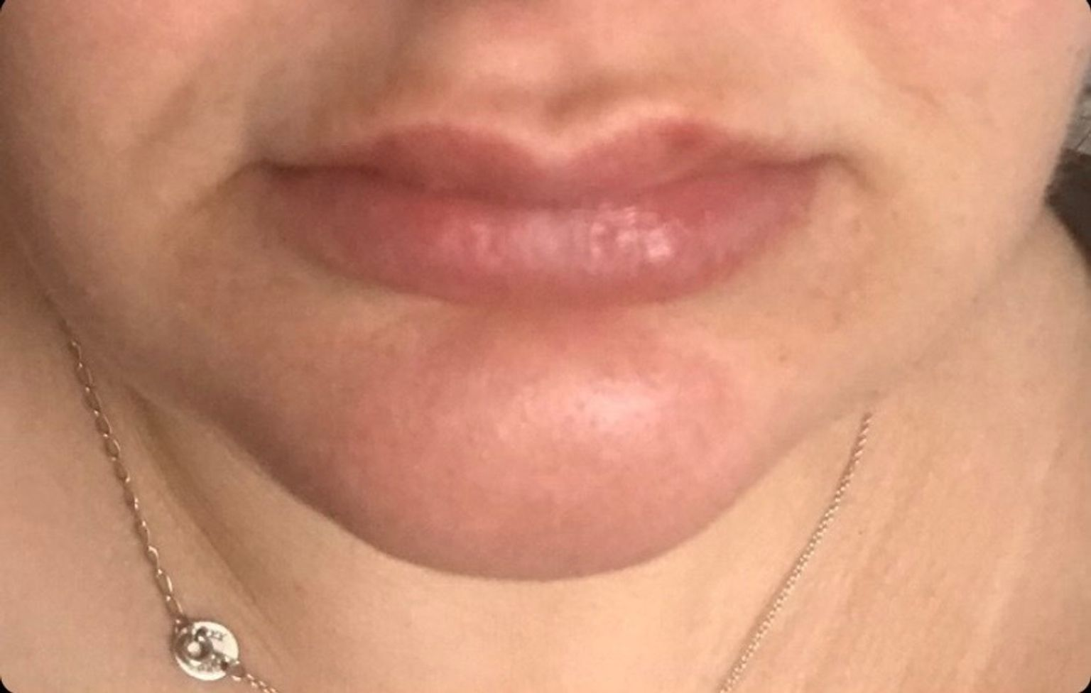 Her beautifully plump pout one week on