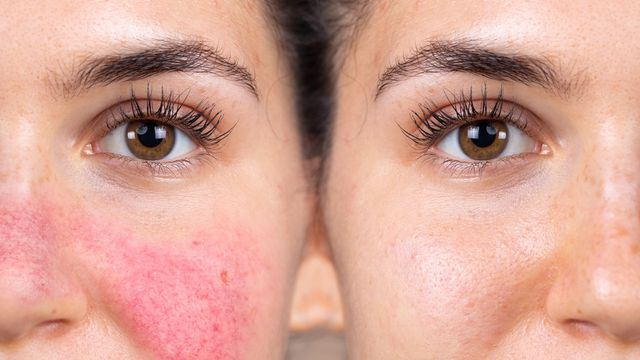 banner for What Is Rosacea, and How Do You Treat it?