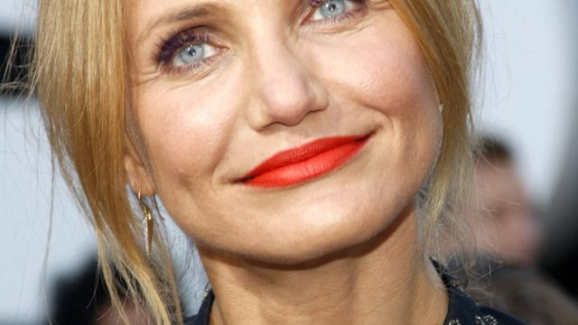 banner for 10 Celebrities Who Love Botox and Fillers