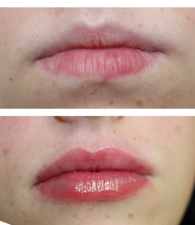 Gema Lorenzo - lip filler before and after - Glowday