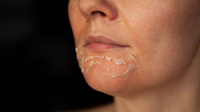 banner for Chemical Peel Near Me: Finding The Right Skin Peel