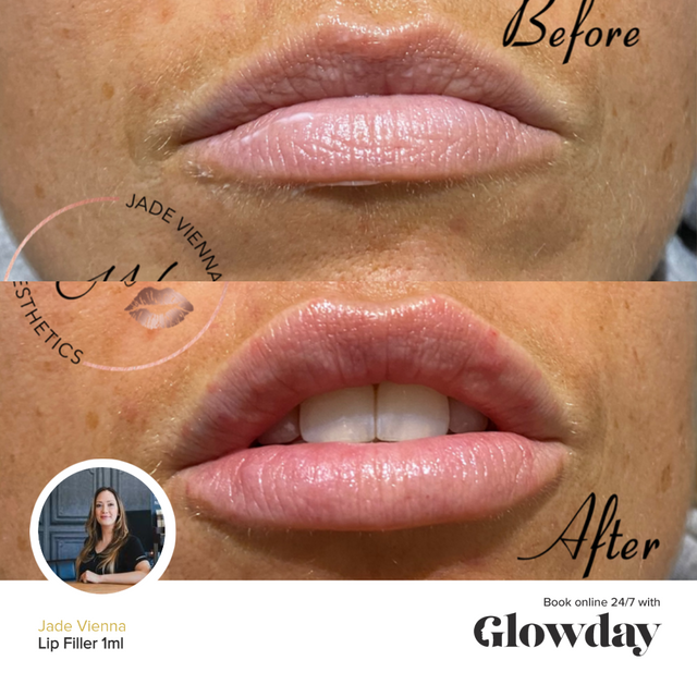 Jade Vienna - Lip Fillers Before and After - Glowday