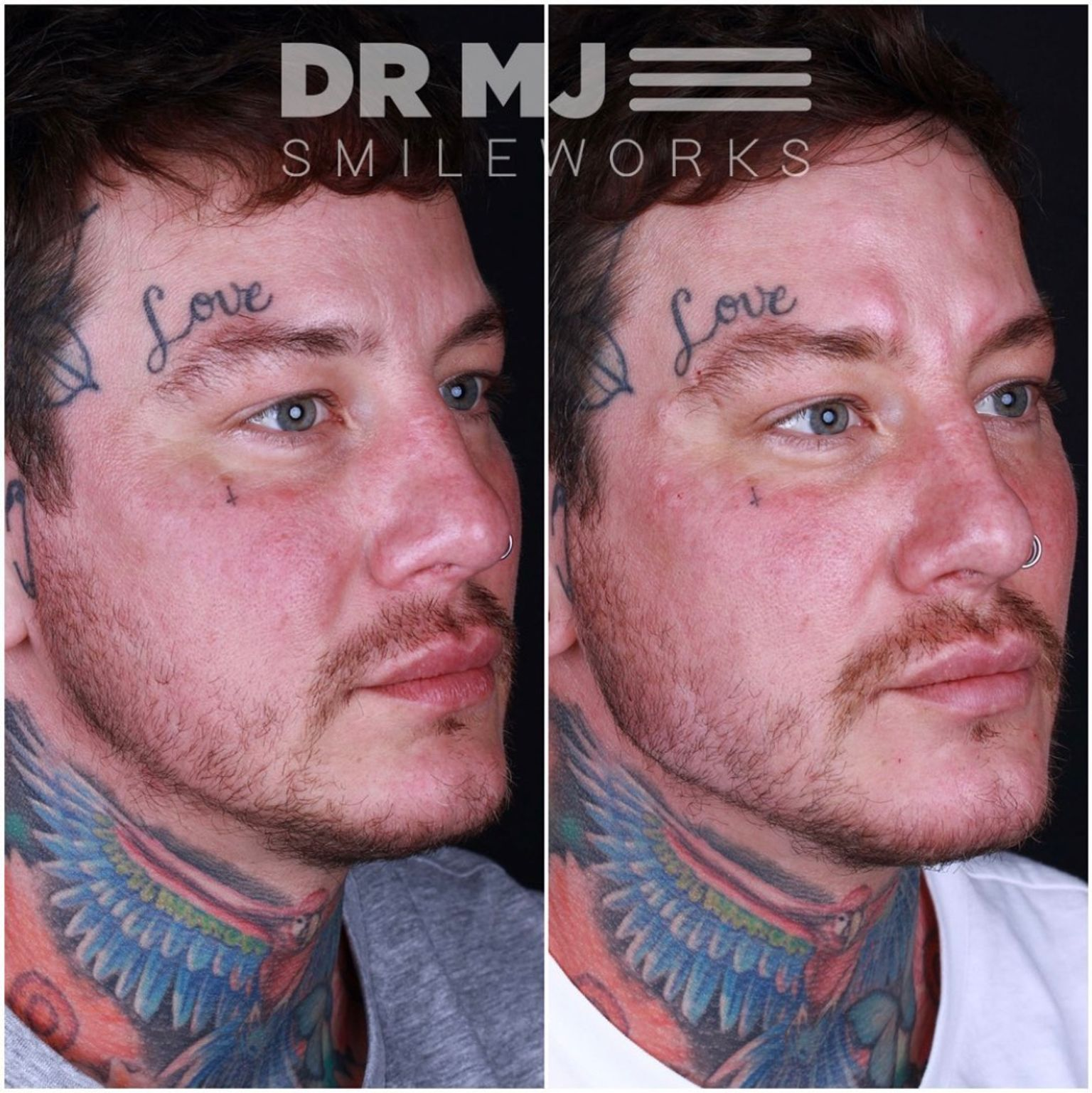 Dr MJ - Jawline filler before and after - Glowday