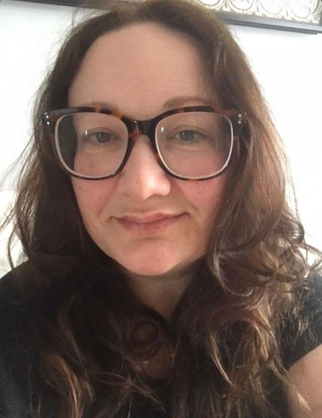 Hannah after her first lip filler treatment