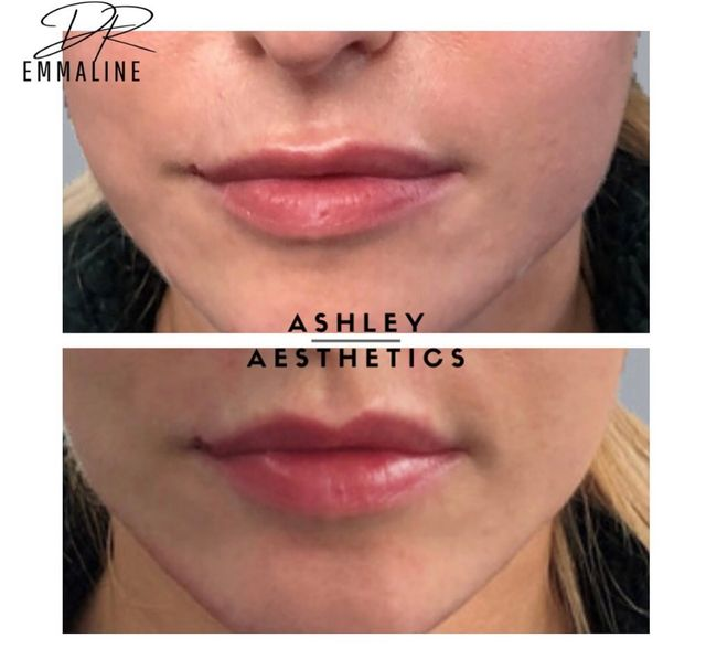 Dr Emmaline Ashley - lip filler before and after - Glowday