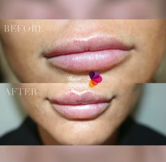Dr Ahmed - lip filler before and after - Glowday