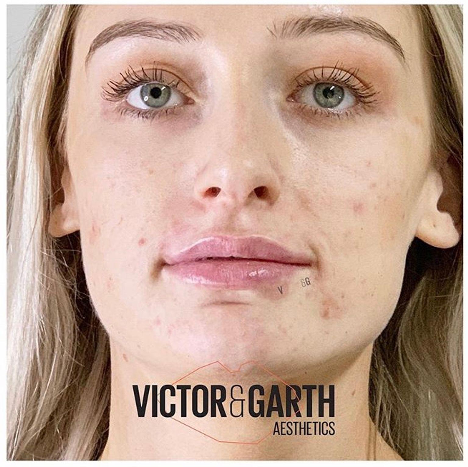 Dr Lauren Hamilton - Lips after lip filler - Glowday