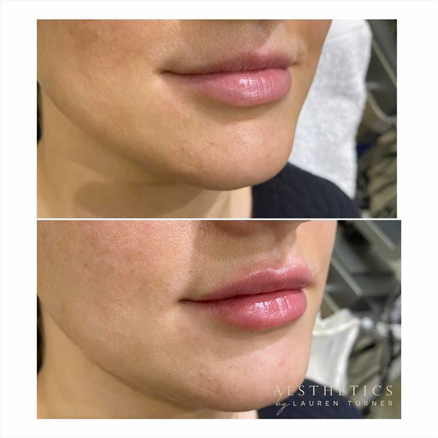 Lauren Turner - before and after lip fillers - Glowday