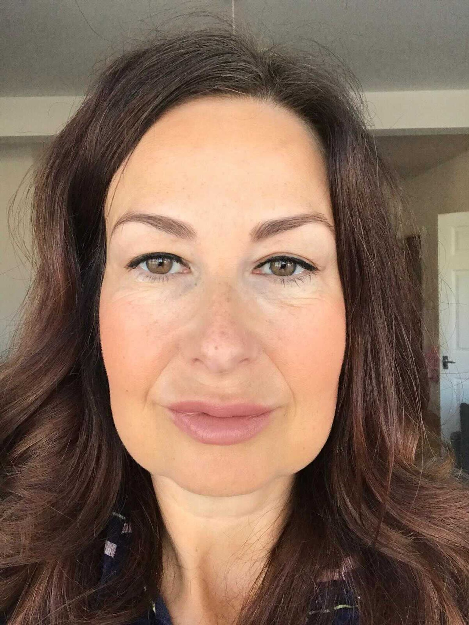 Suzy after Plexr to eliminate the sun damage to her nose, but also before she began Botox in her jaw.