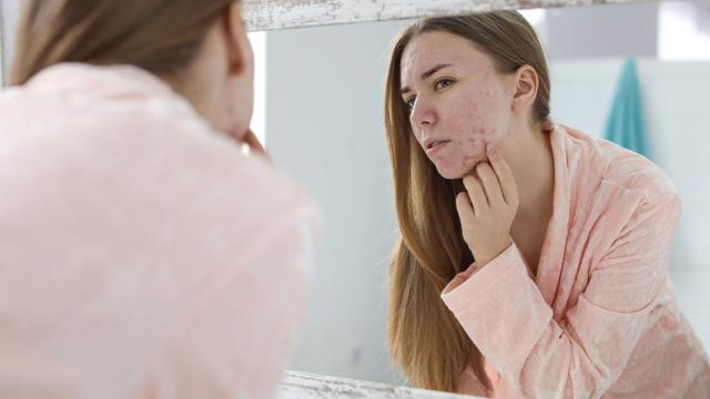 banner for Acne and Sunscreen: What Should You Use?