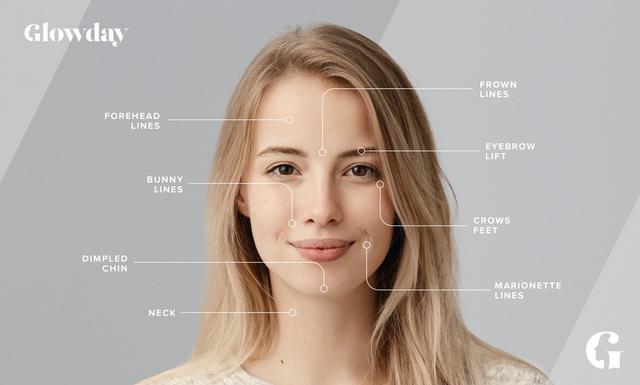 Botox areas