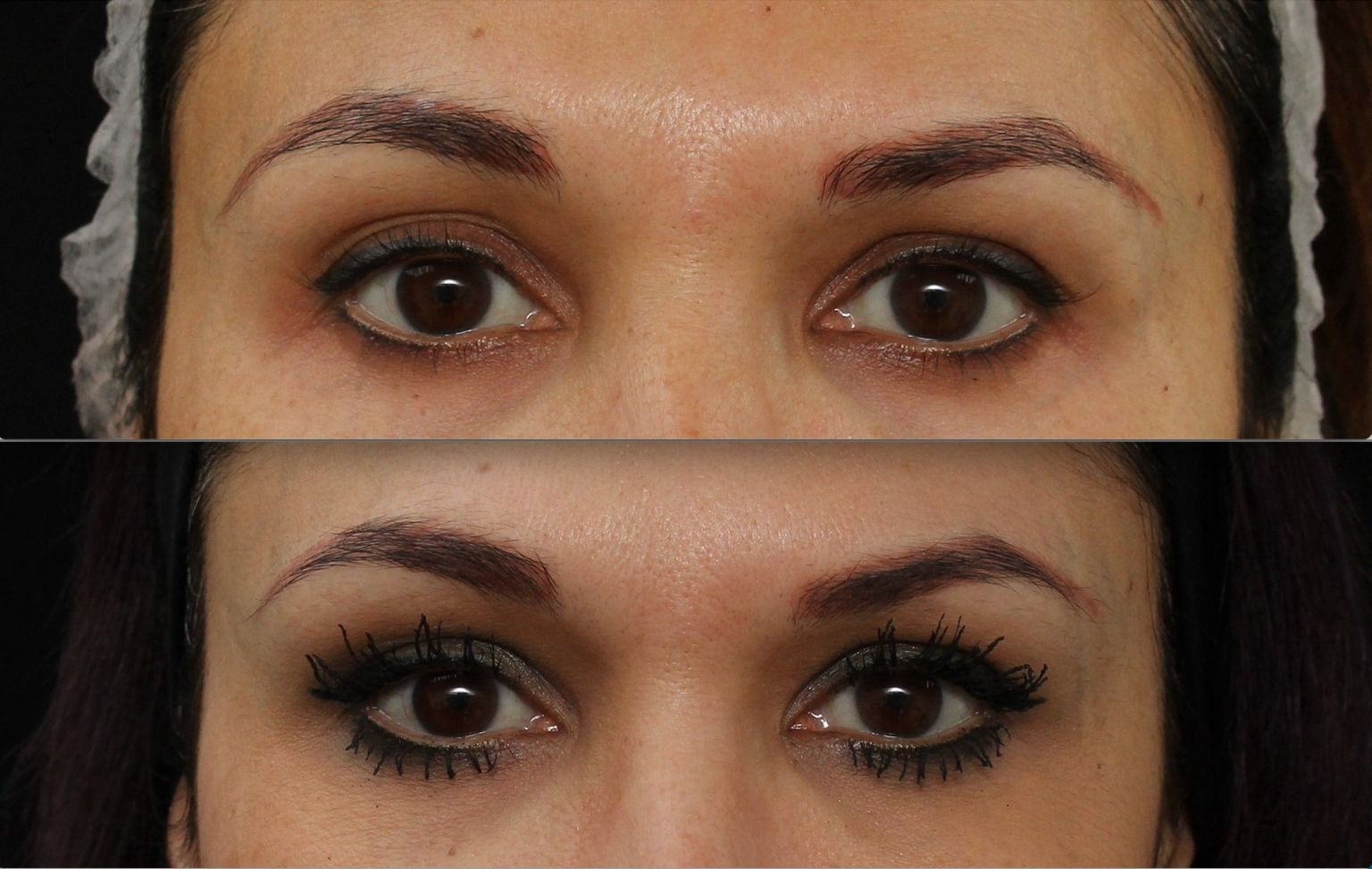 Dr Manav Bawa - temple filler before and after