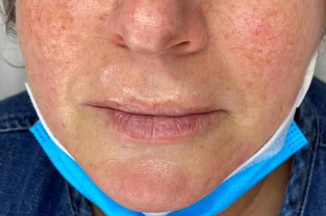 Ella's lips before lip filler for asymmetry