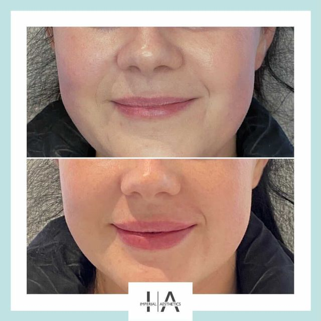 Daniel Hunt - Lip filler before and after - Glowday