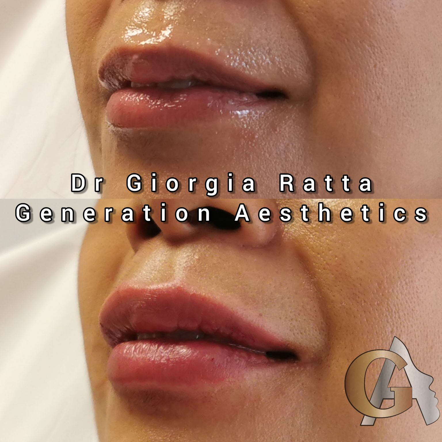 Dr Giorgia Ratta - lip filler before and after - Glowday