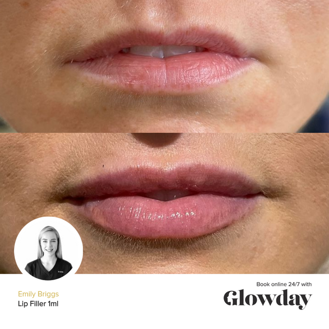 Emily Briggs - Before and After Lip Fillers - Glowday